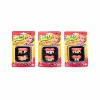 Neppe gebitjes voor kinderen 2 st